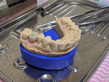 インプラントの歯