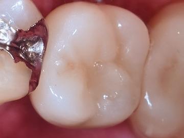 インプラントの歯(上部)