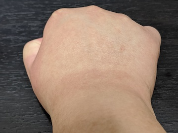 治療後の右手(ズーム)