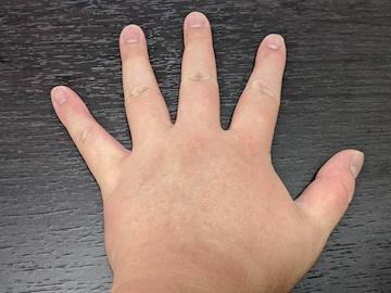 治療後の左手