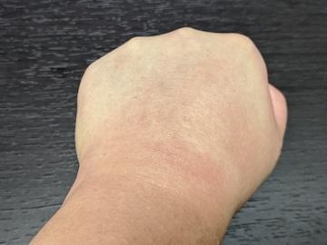 治療後の左手(ズーム)