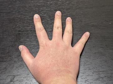 右手の湿疹