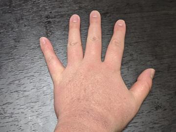 左手の湿疹