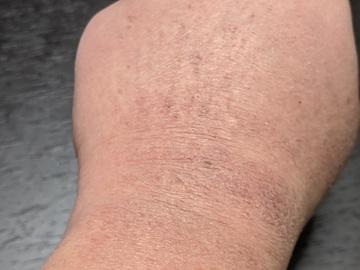 左手の湿疹(ズーム)