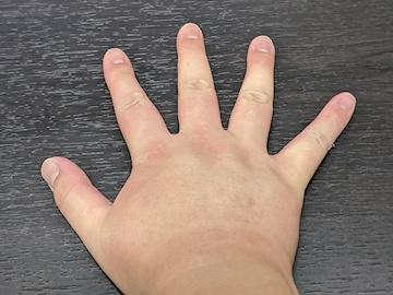 治療後の右手